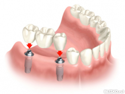 Металлокерамика зубы казань цены